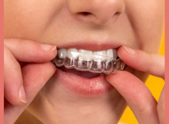 How to Talk to Your Kids About Getting Braces